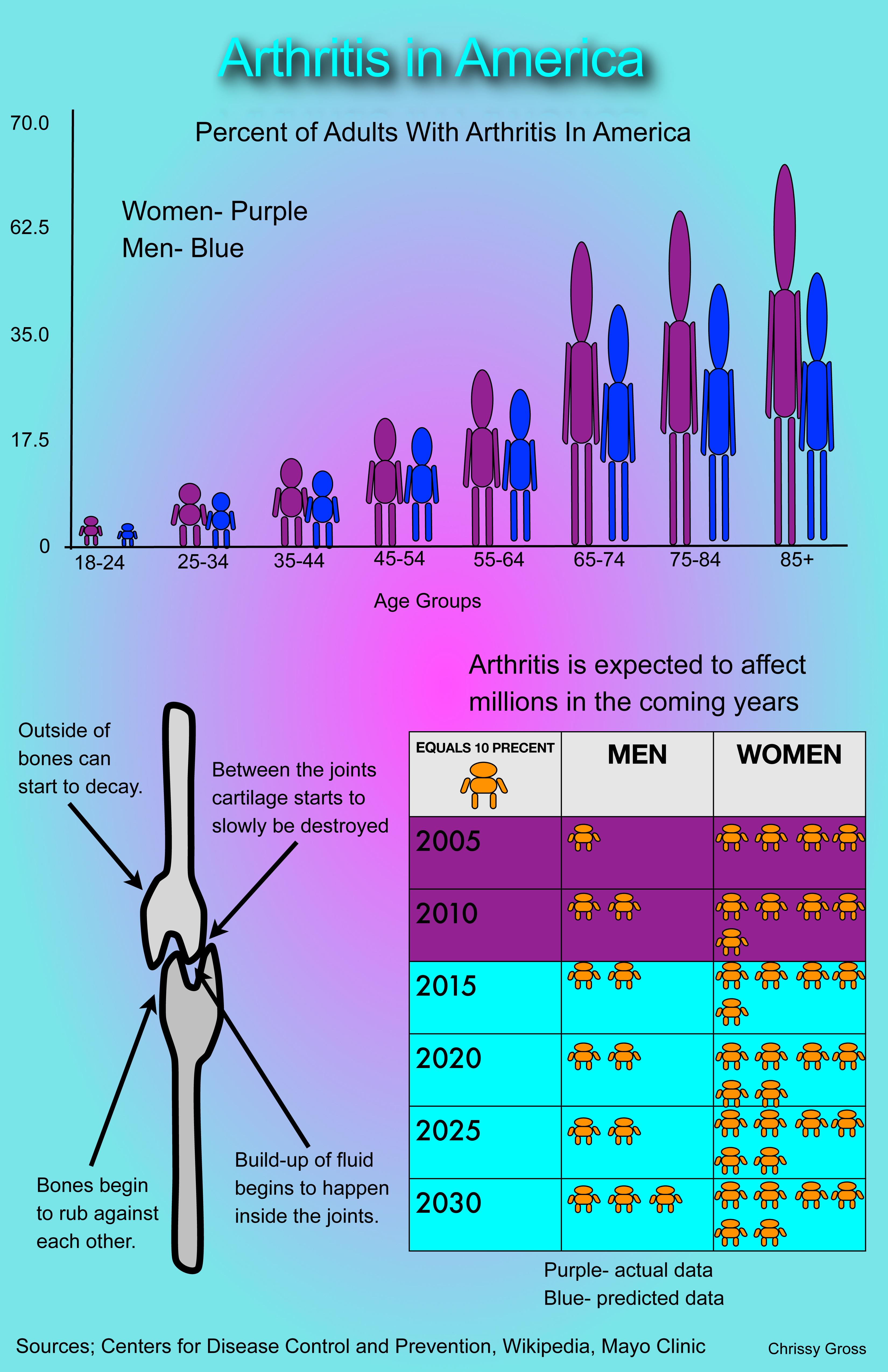 Infographic: Arthritis in America – SLI